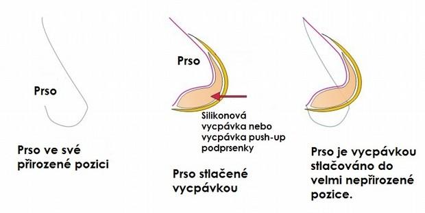Jak push-up vycpávka deformuje prso